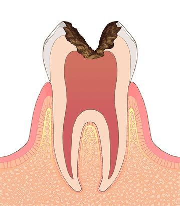 虫歯や歯周病のリスクが高まる