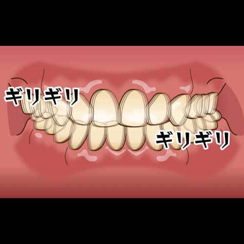 歯ぎしり・食いしばりなどを引き起こす