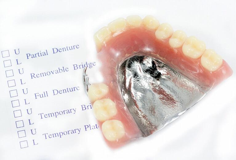 様々な種類を扱い患者様のご要望に合わせた入れ歯製作