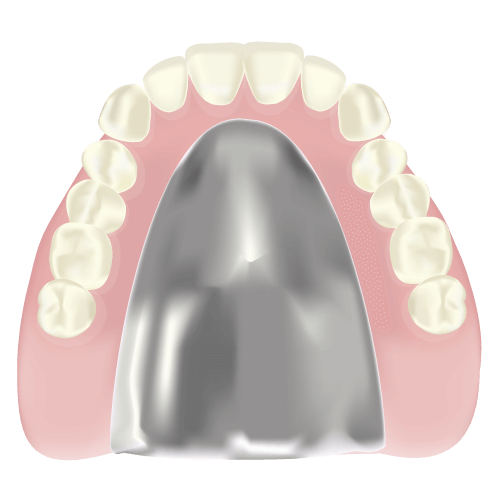 金属床義歯(自費)