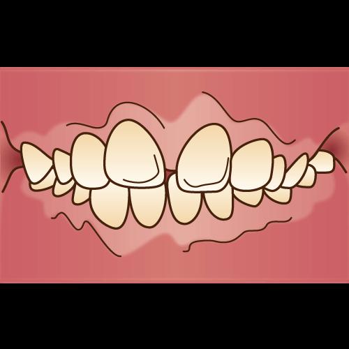 出っ歯の治療はマウスピース矯正で可能な場合がございます。