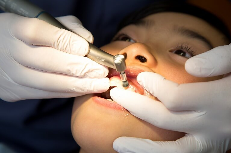 歯周病や口臭の原因を取り除くためのPMTC