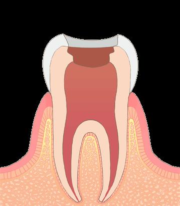 歯髄を除去します