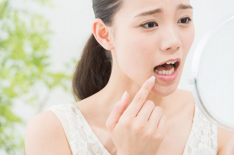 京都でホワイトニングが安い岩崎歯科医院